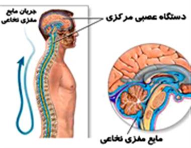 مایع مغزی