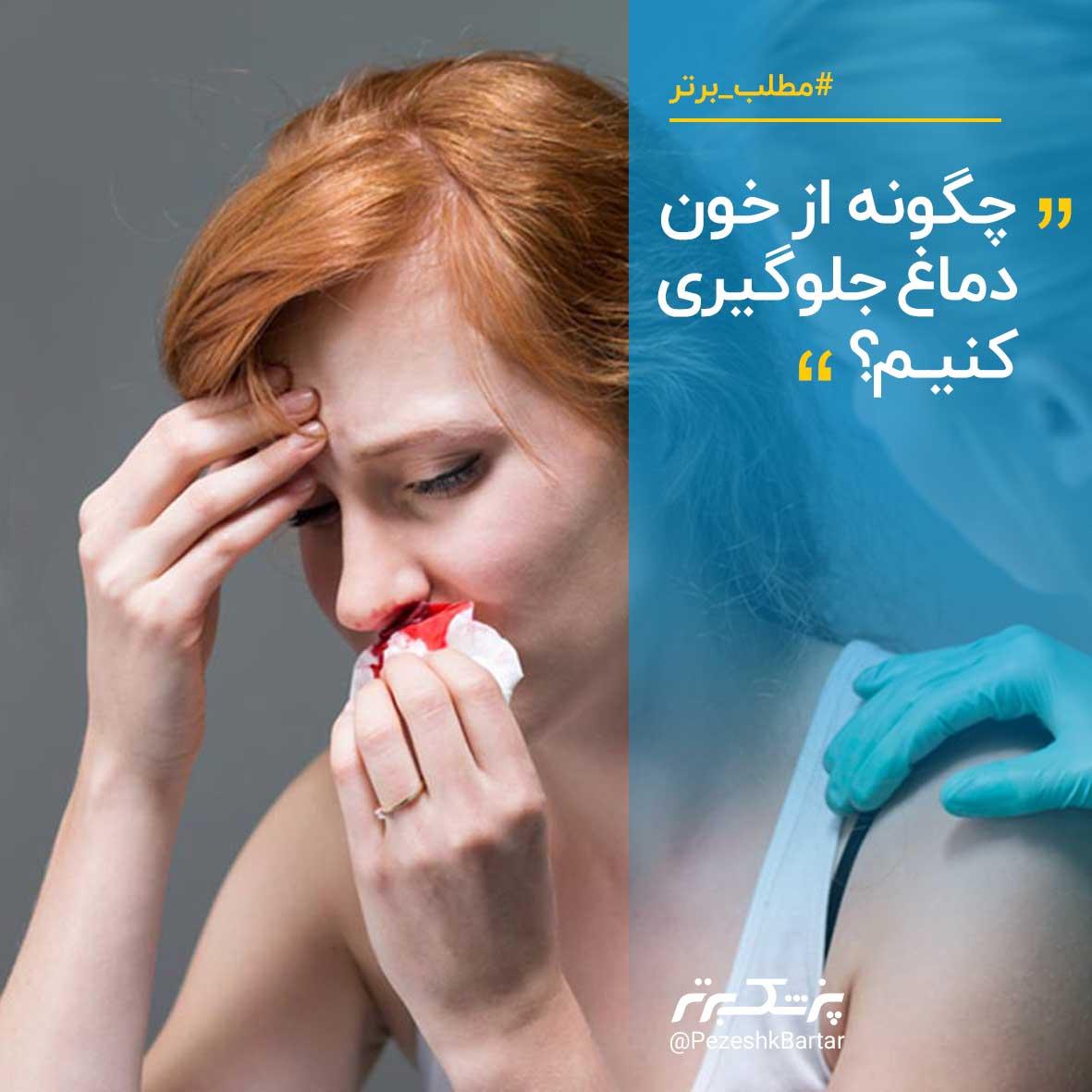 چگونه از خونریزی بینی یا خون دماغ جلوگیری کنیم؟