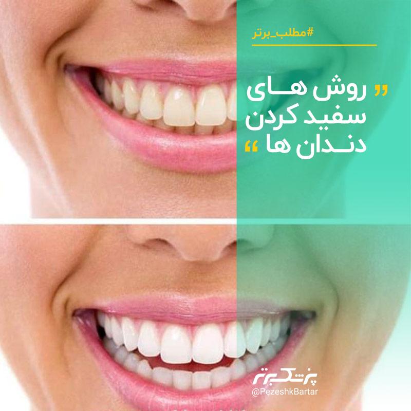 سفید کردن دندان یا بیلیچینگ، روش ها و مضرات آن