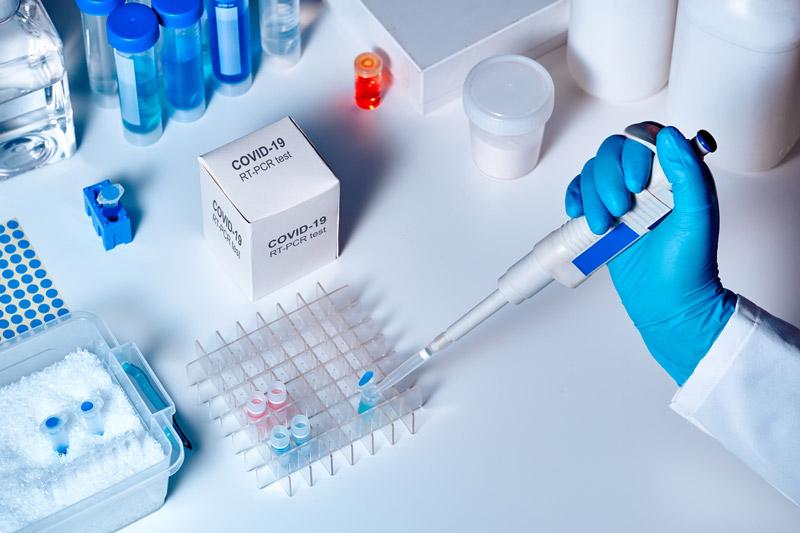 آزمایش PCR کرونا