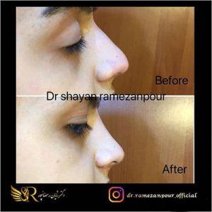 دکتر-شایان-رمضان-پور